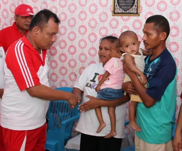 Kajari Malteng Kunjungi Balita Penderita Gizi Buruk